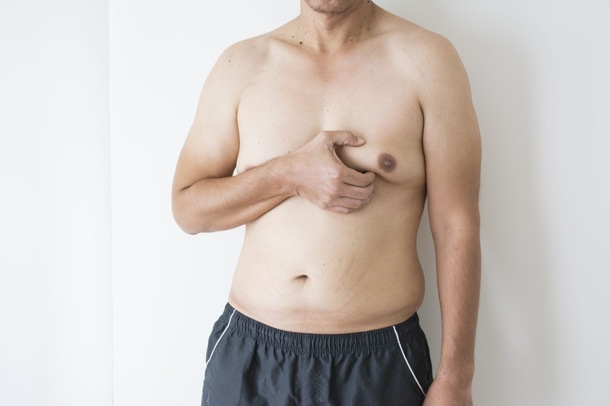 Male Breast Reduction in Oklahoma