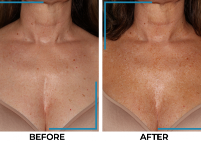 breast implant removal / scar removal